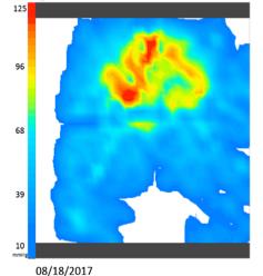 iShear pressure mapping Vicair Adjuster 12